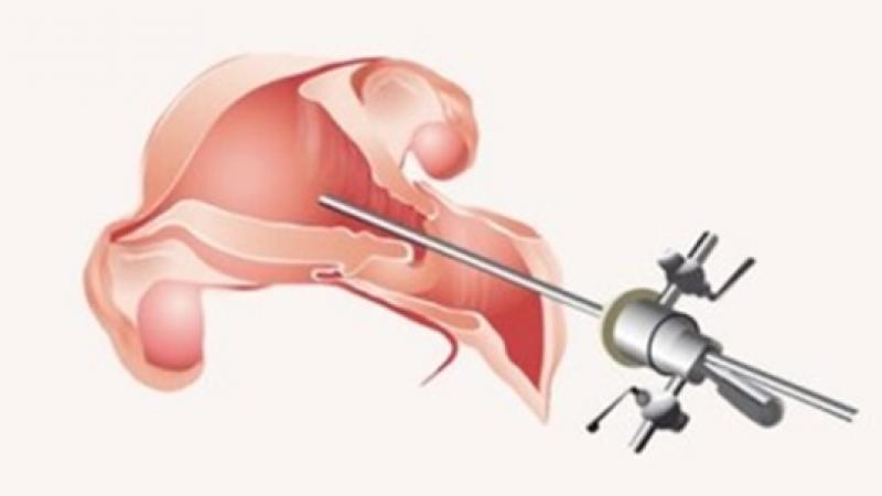 Какво е хистероскопия?