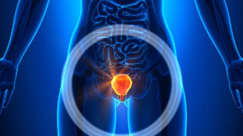 Възможности за лечение на хроничен бактериален простатит